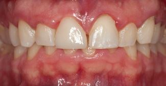 Front tooth repaired with dental restoratoin
