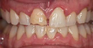 Cracked and decayed top front tooth