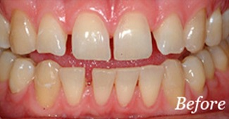 Smile with gaps between teeth before alignment