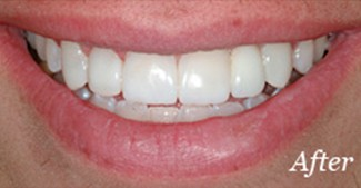 Smile after replacing missing top tooth