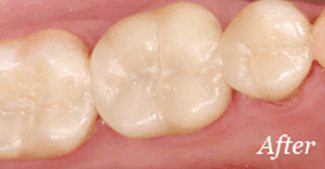 Metal fillings replaced with tooth-colored fillings