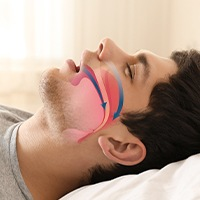 Sleeping man with airway animation over profile