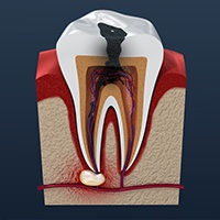 Animated tooth in need of root canal therapy