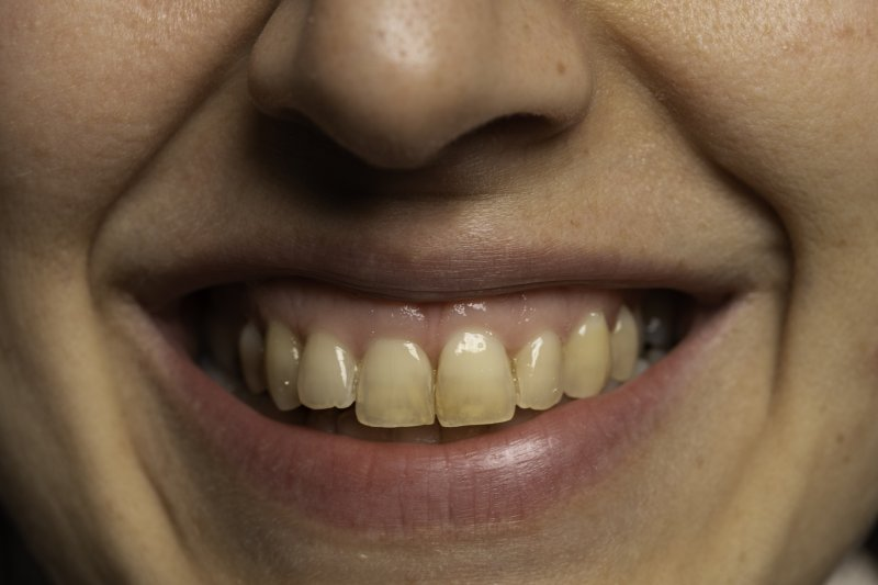 Woman smiling with stained teeth